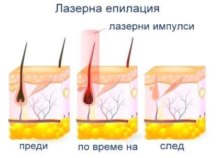 Лазерна епилация Бургас с Primelase HR